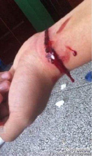 该女子发布的割腕图 图片来源:网络