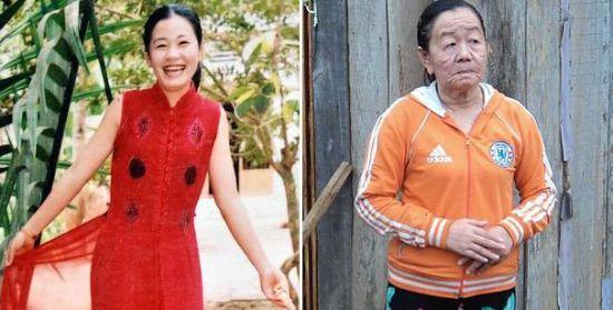 女子过敏后患怪病 短时间内衰老50岁