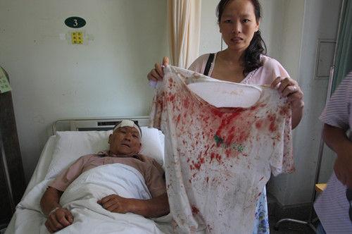 昨天上午,宋德海师傅躺在医院急诊室治疗,女儿展示父亲血迹斑斑的衣服。 记者杨涛 摄