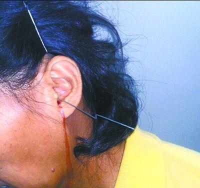 右图:刘女士被伞骨穿耳,血流如注。