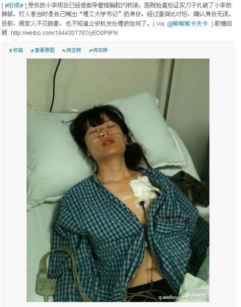 因排队起纠纷,女教师李亚娜被捅伤。