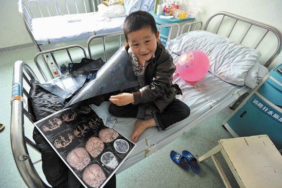 目前,病情已影响到冉绍州右手的活动能力,亟需做手术 记者李响摄