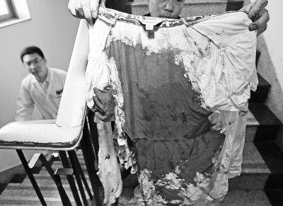 何女士的上衣被血浸透。记者杨涛摄