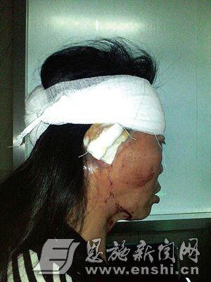 杨女士被打伤