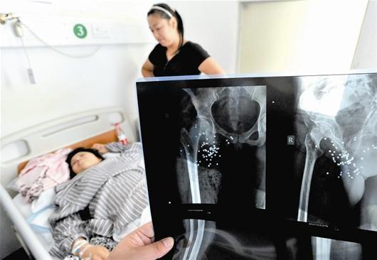 图为:女子遭枪击后,体内留下数十颗弹丸