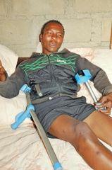 南非男子因手术失误被切生殖器