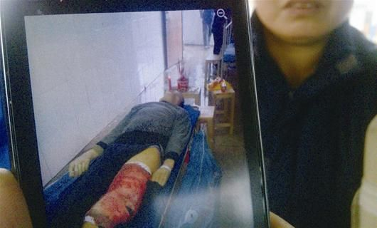 家属拿出胡大平大出血时的手机图片