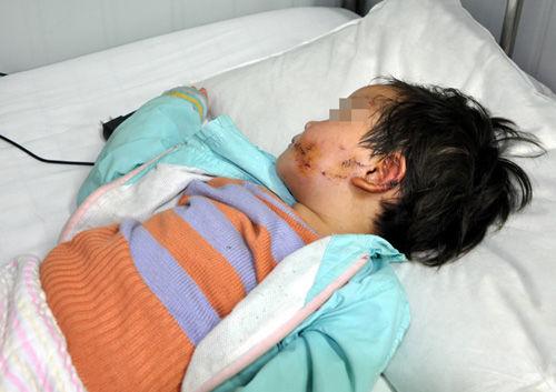 刘颖的左耳及面部、额头等部位,留有缝针的痕迹