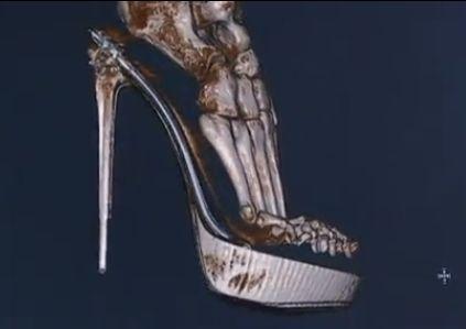 高跟鞋女性脚变形