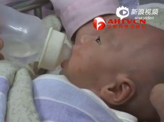 男婴没肛门遭遗弃