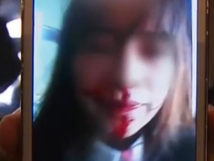 女孩被6旬老板包养 怀孕后遭暴揍满脸血